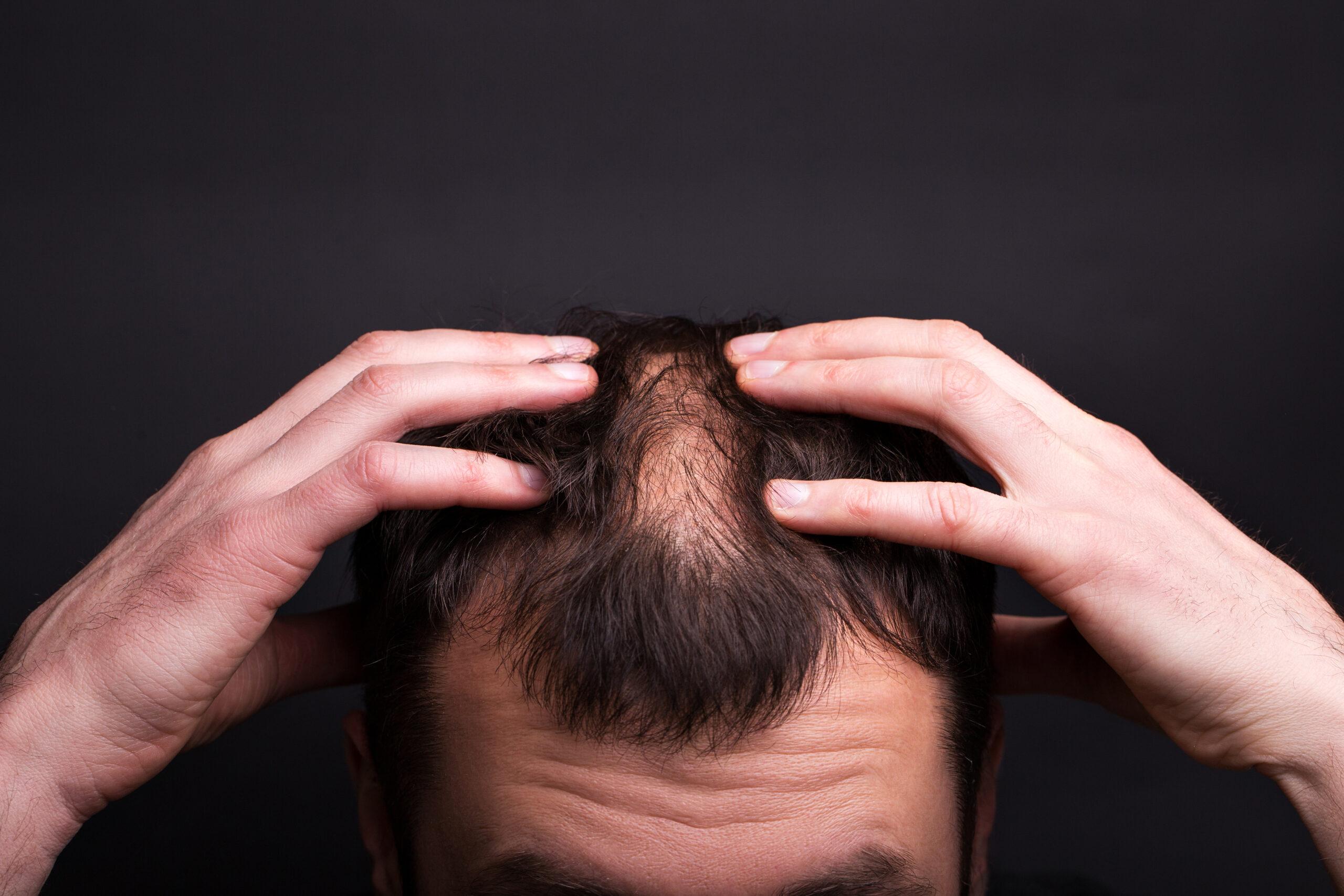 Männer, die zu viel arbeiten, bekommen eine Glatze